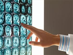 Kansas Brain Injury Attorney