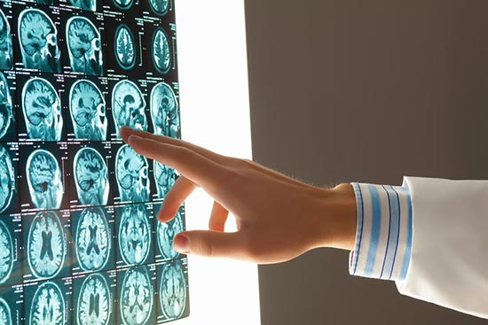 MRI of a Traumatic Brain Injury after Car Accident